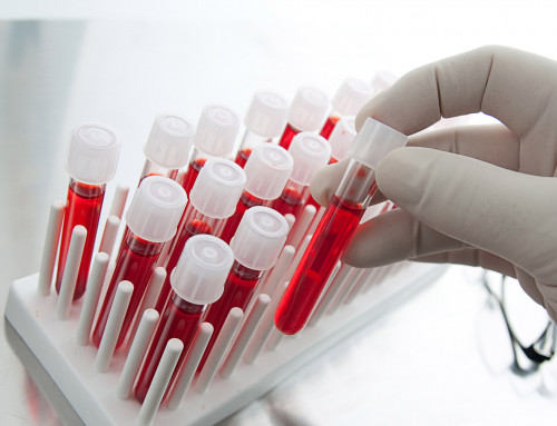 The Benefits of Blood Testing for Performance